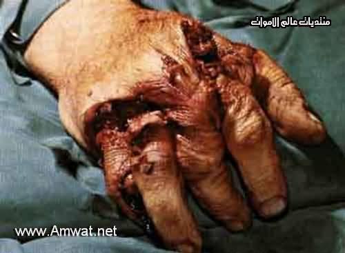 hand gore (medical) 945-150489e